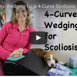 4-Curve Wedging for Scoliosis