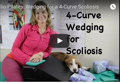 Wedging 4-Curve (S-Curve) Scoliosis