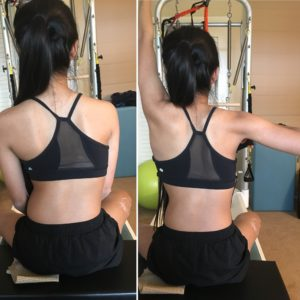 Scoliosis Exercise Classes