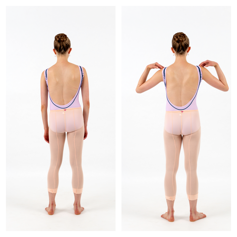 Dance and Scoliosis